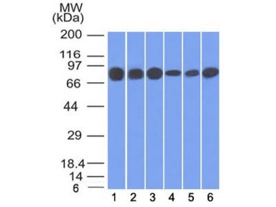 Gamma Catenin Antibody / Plakoglobin (Mouse Monoclonal)