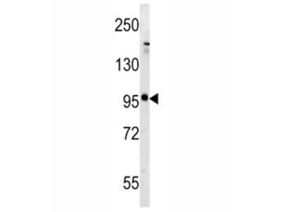 Glutamate Receptor 5 Antibody (metabotropic)