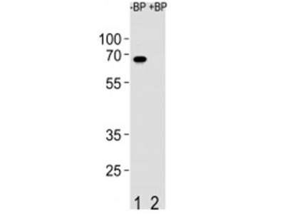 ETV5 Antibody