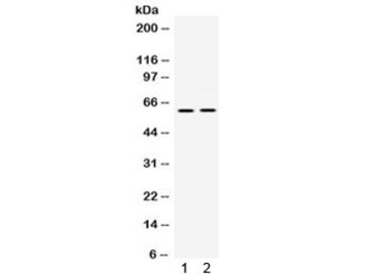 PAK3 Antibody