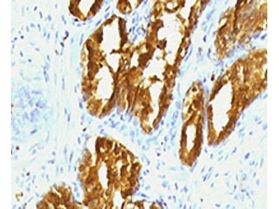 PSAP Antibody (Mouse Monoclonal)