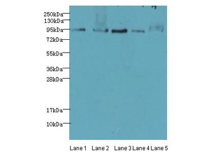 THOC1 Polyclonal Antibody