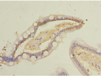 COMMD9 Polyclonal Antibody