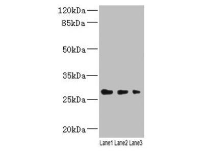 LRRC57 Polyclonal Antibody