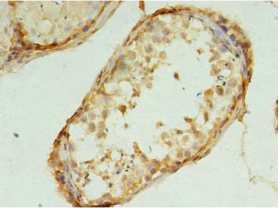 TMEM9 Polyclonal Antibody