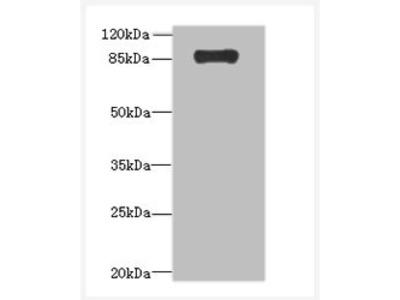 ADAMTS4 Polyclonal Antibody