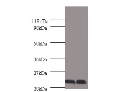CSH1 Polyclonal Antibody