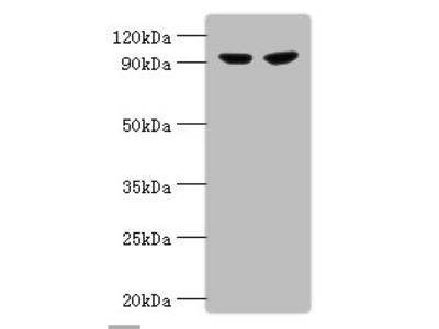 PYGL Polyclonal Antibody