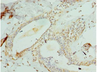 CCDC97 Polyclonal Antibody