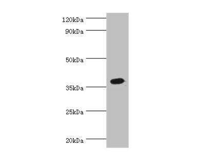 ATP6AP2 Polyclonal Antibody