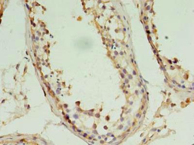 PIN1 Polyclonal Antibody