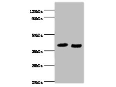 RAD23A Polyclonal Antibody