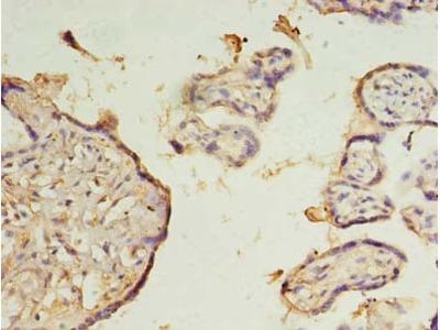 ZMYND19 Polyclonal Antibody