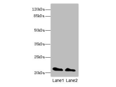 KRAS Polyclonal Antibody