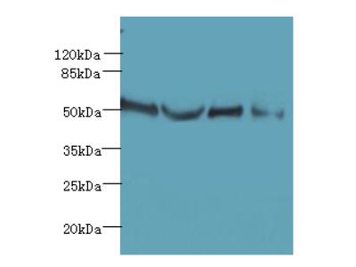 TTC38 Polyclonal Antibody