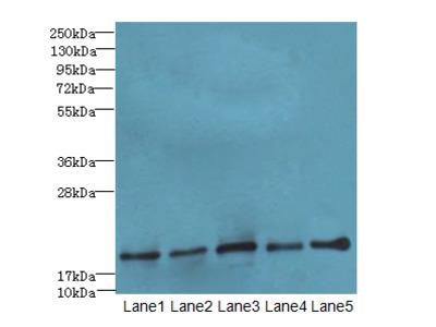 PPIL3 Polyclonal Antibody