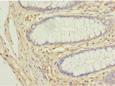 COX11 Polyclonal Antibody