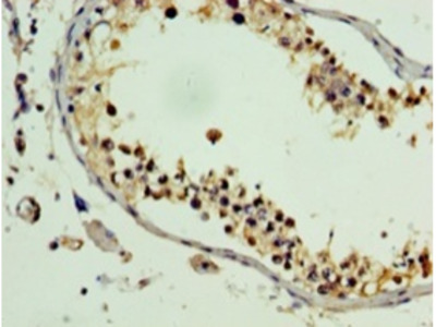 PLEKHB2 Polyclonal Antibody