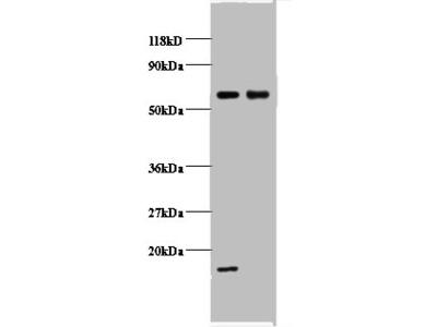 COX5B Polyclonal Antibody