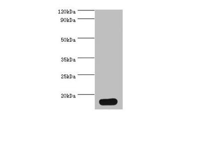 PVALB Polyclonal Antibody