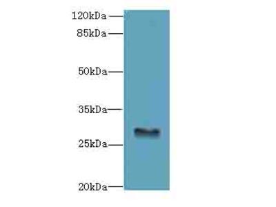 GPM6B Polyclonal Antibody