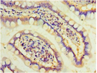 DAND5 Polyclonal Antibody