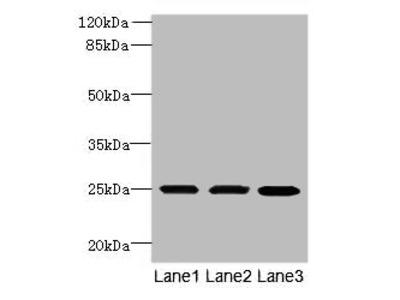 TMEM65 Polyclonal Antibody