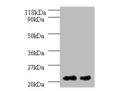 ORM2 Polyclonal Antibody