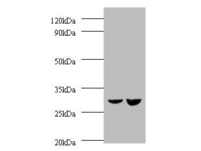 UQCRFS1 Polyclonal Antibody