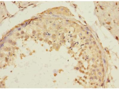 TIGD4 Polyclonal Antibody