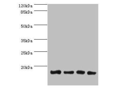 LGALS1 Polyclonal Antibody