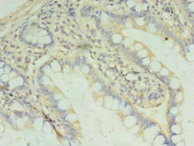PAFAH1B2 Polyclonal Antibody