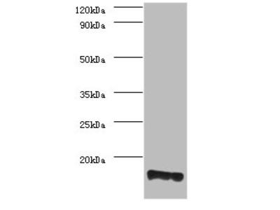 PMP2 Polyclonal Antibody