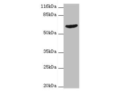 GRK4 Polyclonal Antibody