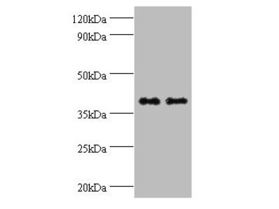 QPCT Polyclonal Antibody