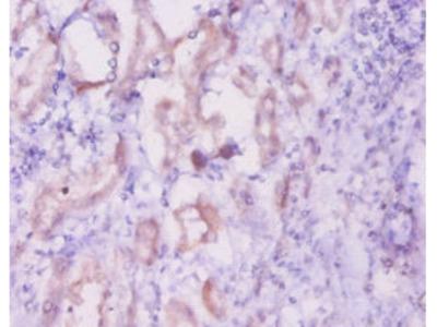 INHA Polyclonal Antibody