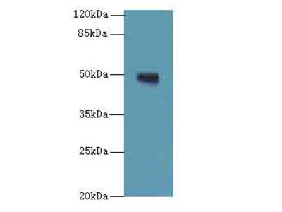 TUBB1 Polyclonal Antibody