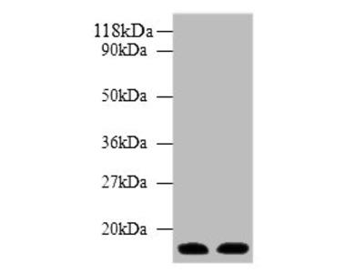 PTH Polyclonal Antibody