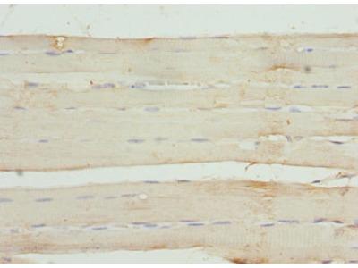 TNNI3 Polyclonal Antibody