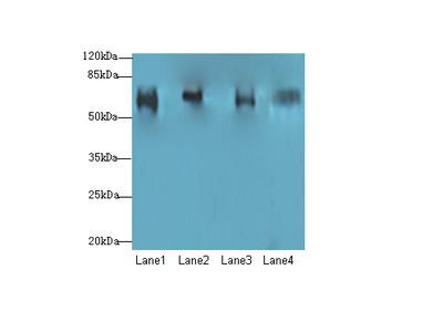CFAP52 Polyclonal Antibody