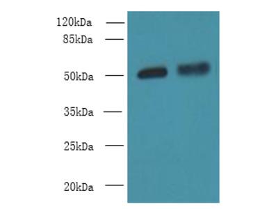 CBX2 Polyclonal Antibody