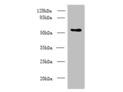 Csad Polyclonal Antibody