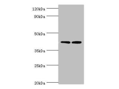 LIPA Polyclonal Antibody