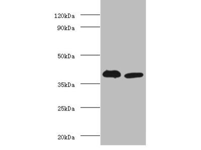 Adh5 Polyclonal Antibody
