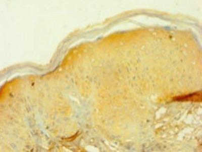 PIP Polyclonal Antibody