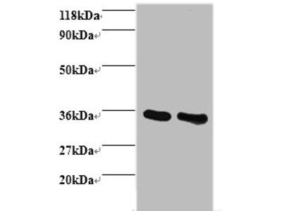 ANXA5 Polyclonal Antibody