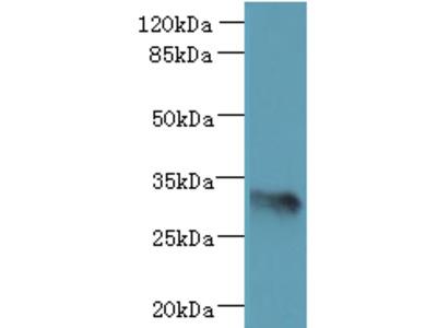 ARMCX6 Polyclonal Antibody