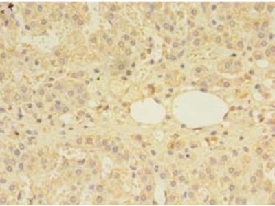 MTR Polyclonal Antibody