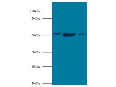 BAG5 Polyclonal Antibody