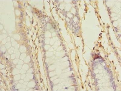 SCFD2 Polyclonal Antibody
